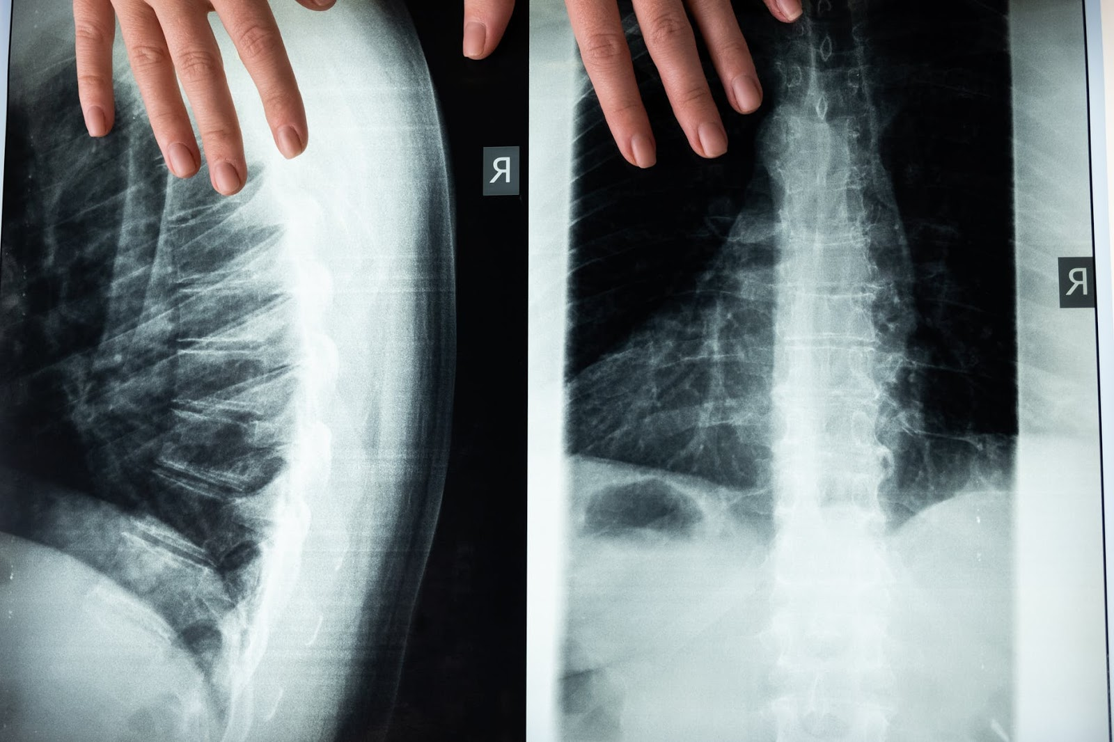 scoliosis in runners